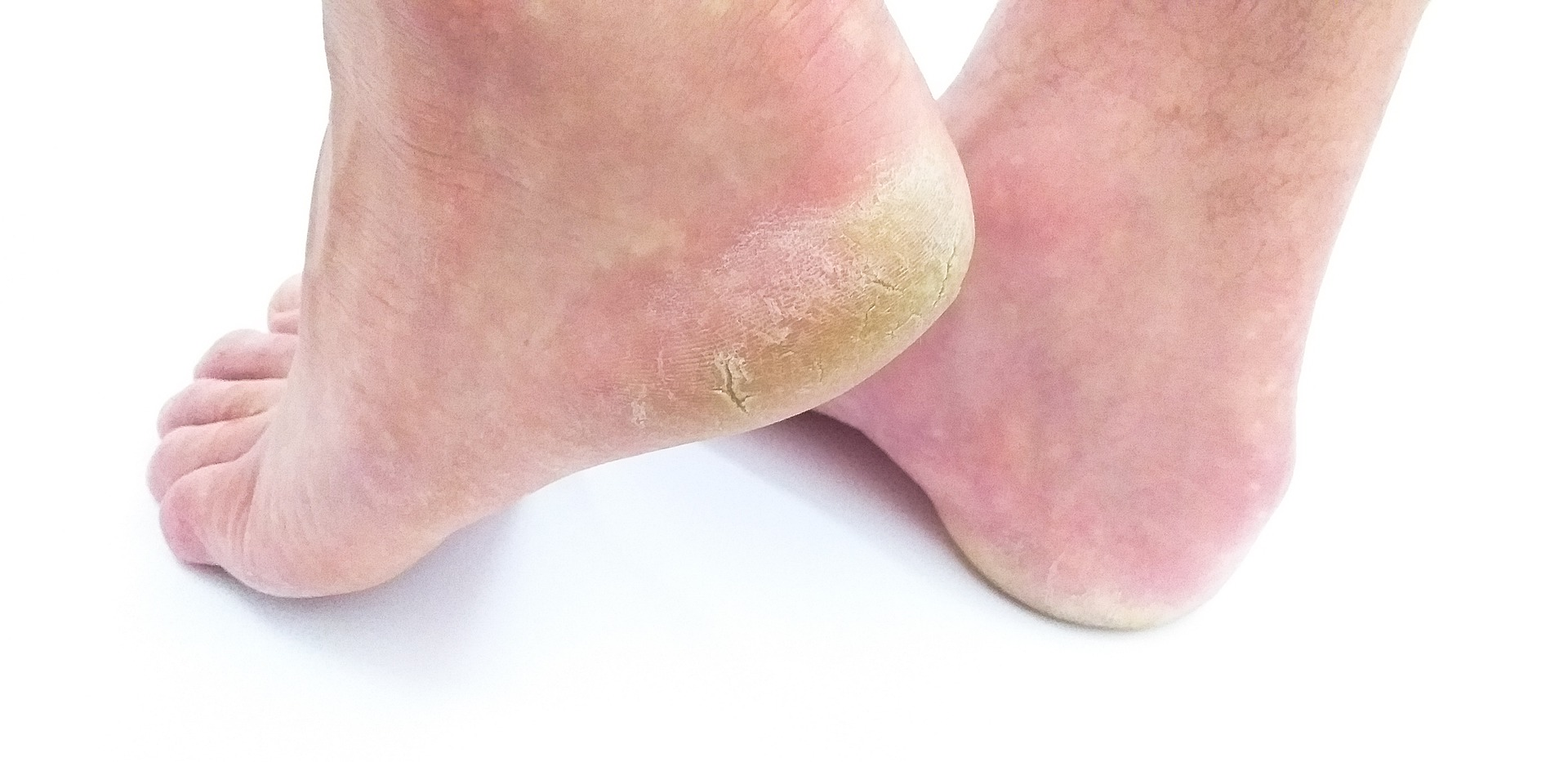 Die besten Hausmittel gegen Fußpilz